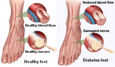 Piciorul diabetic