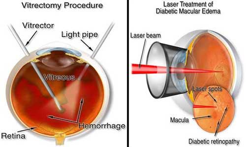 Tratamentul retinopatiei diabetice